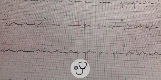Cardiomiopatia de takotsubo