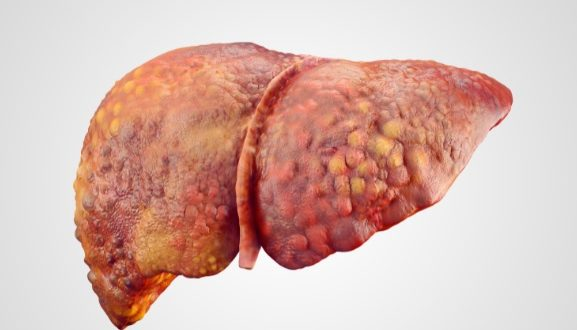 esteato-hepatite
