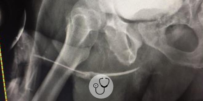 uretrorragia