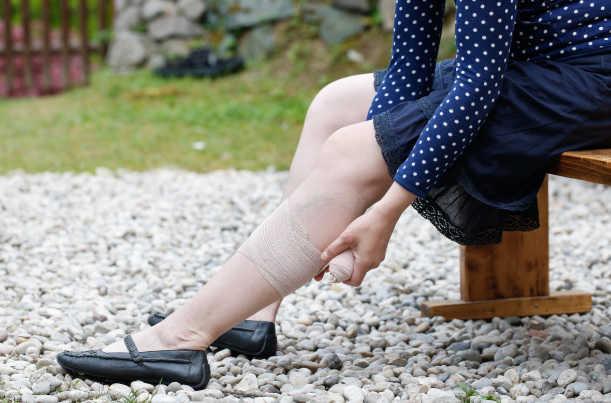 curativos para úlceras de perna crônicas fotos