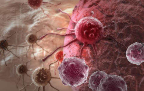 carcinoma medular de tireoide