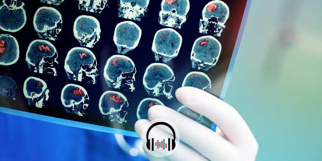podcast - top 5 neurologia