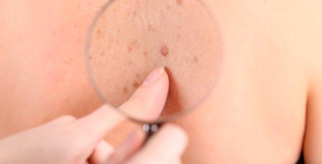 doenças dermatológicas