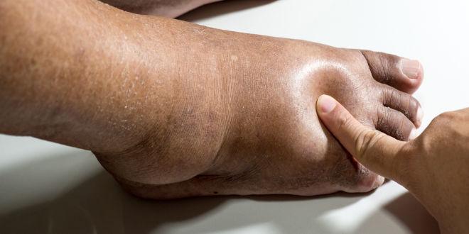 Inchado tratamento tornozelo ósseo do