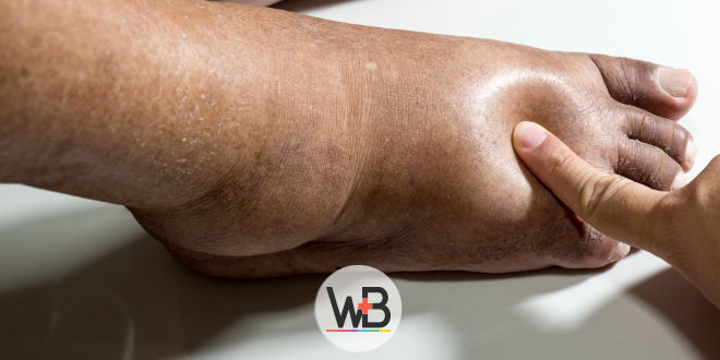 A do pé do com úlcera cuidados dedo