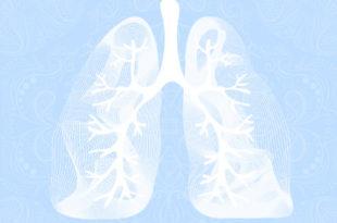 pneumonia aspirativa