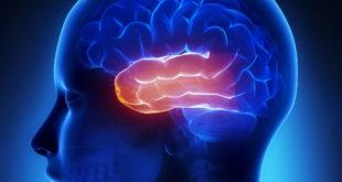 epilepsia de lobo temporal