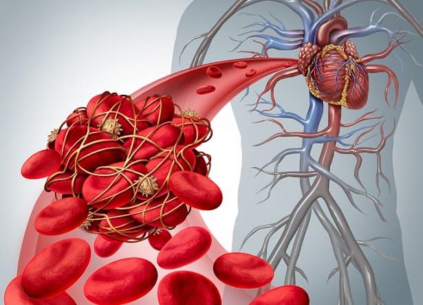 obstrução arterial aguda