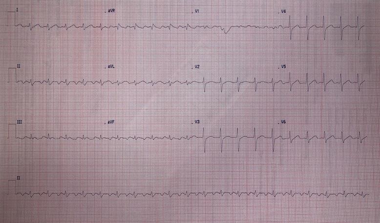 quiz cardiologia