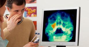 osteonecrose dos maxilares