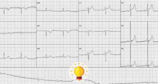 quiz eletrocardiograma