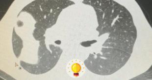 quiz tumor fantasma