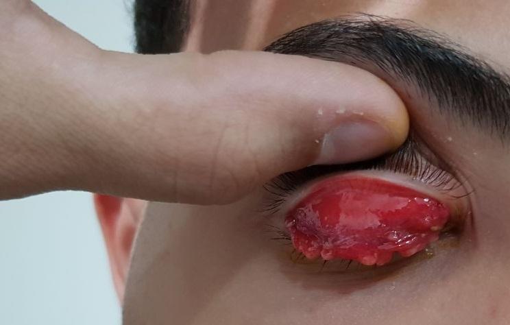 Foto dos efeitos da síndrome oculoglandular de Parinaud