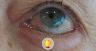 degeneracao macular