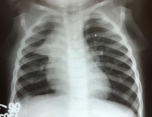radiografia de torax de paciente pediatrico