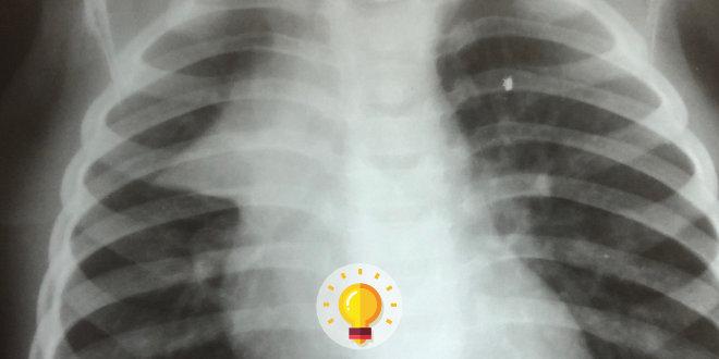 radiografia de torax de lactente