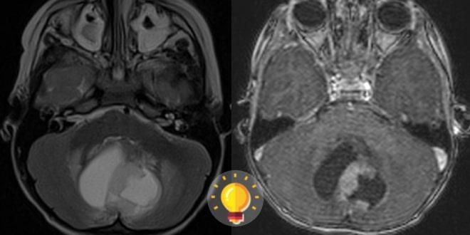 ressonância magnética de uma criança com cefaleia, náuseas e vômitos