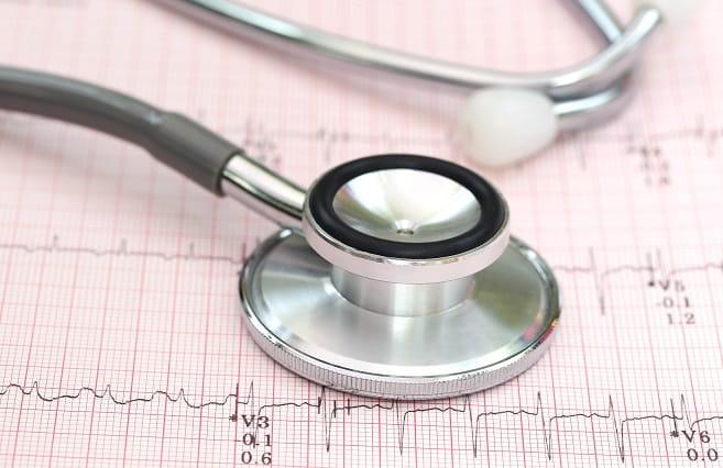 eletrocardiograma com um estetoscopio em cima mostrando extrassístoles ventriculares