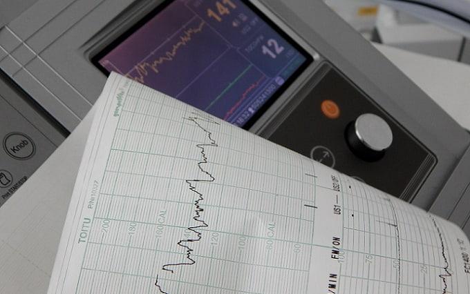 monitor apresentando eletrocardiograma com fibrilação atrial