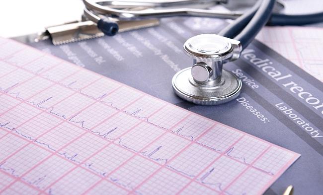 eletrocardiograma apresentando resultado de tromboembolismo e estudando o caso a partir da diretriz do esc 2019