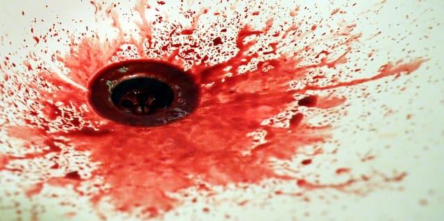 mancha de sangue espirrado na pia