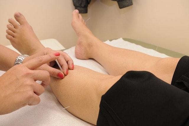 mulher recebendo terapia de acupuntura