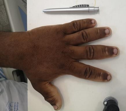 mão com tamanho anormal representando acromegalia
