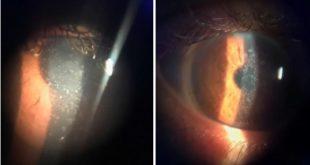 zoom de olhos com opacidades corneais
