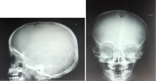 radiografia de cranio