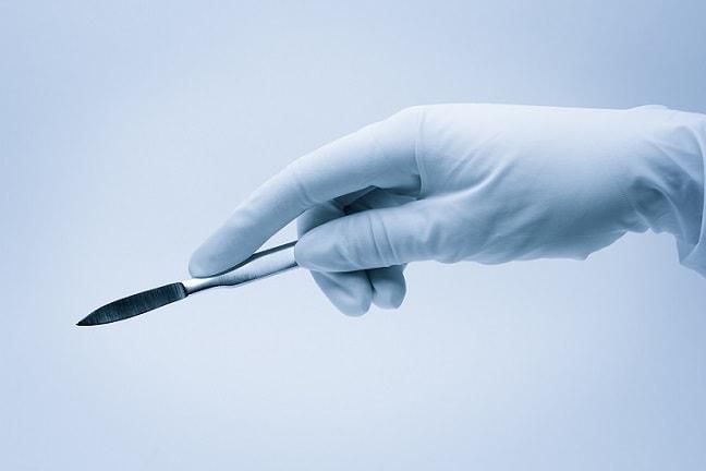 mão com luva cirúrgica segurando bisturi para cirurgia de correção de mamas tuberosas