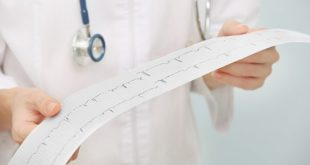 médico segurando eletrocardiograma de paciente com cardiopatia isquêmica estável