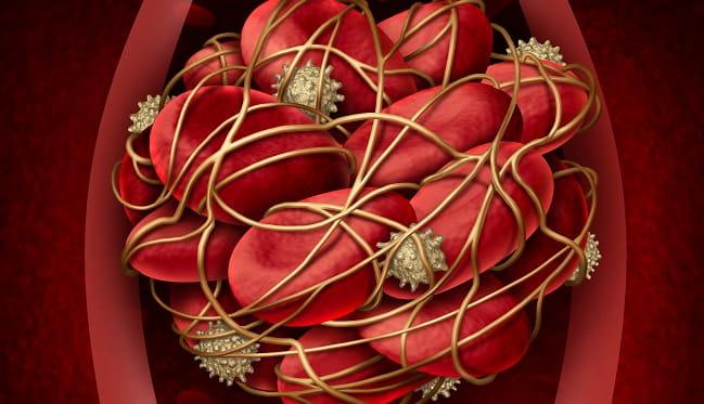 coágulo de sangue representando um tromboembolismo venoso