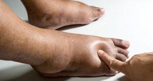 pés inchados por síndrome dolorosa regional complexa
