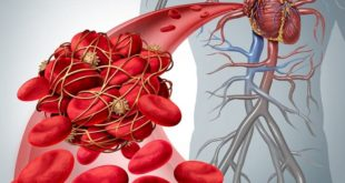 imagem computadorizada de coágulo de sangue representando trombose
