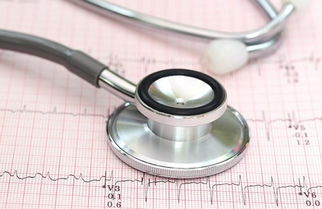 estetoscópio em cima de elerocardiograma de paciente com insuficiência cardíaca