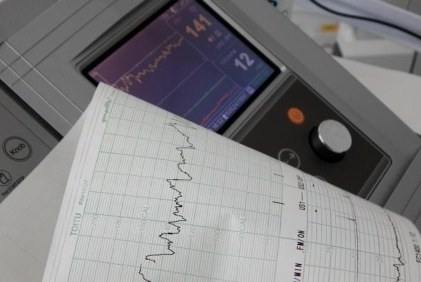 monitor de ecg ao lado de folha de paciente com câncer de mama