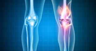 foto digital de joelhos, um mais avermelhado por lesão do ligamento cruzado posterior