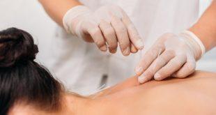 médica realizando acupuntura em paciente, colocando agulha nas costas