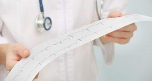 médico segurando eletrocardiograma de paciente com síndrome cardiovocal