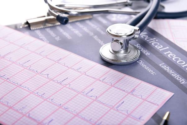 eletrocardiograma impresso de paciente com insuficiência cardíaca