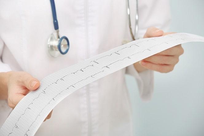 médico conferindo eletrocardiograma de paciente com flutter atrial