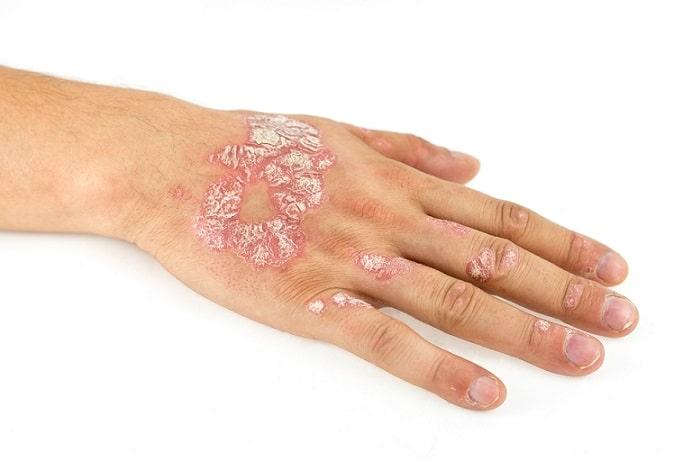 mão de pessoa com psoríase