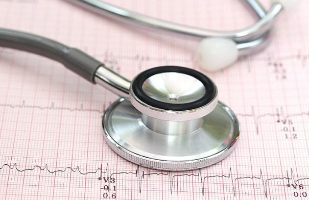 estetoscópio em cima de eletrocardiograma de paciente com pericardite aguda