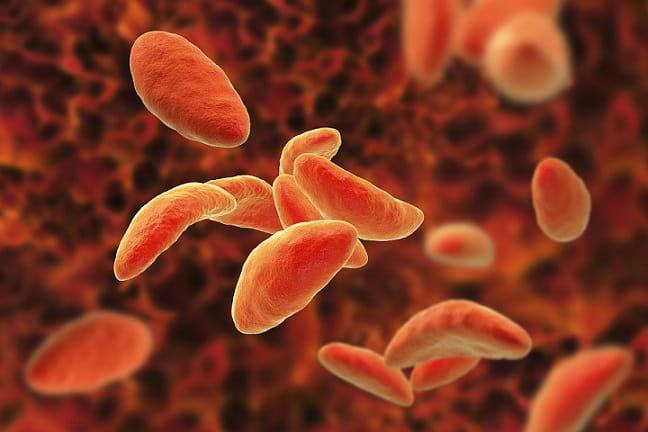 protozoários em imagem digitalizada, causadores da leishmaniose visceral