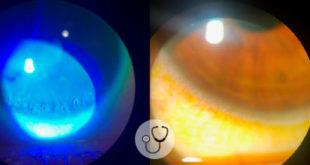 exames oculares de paciente
