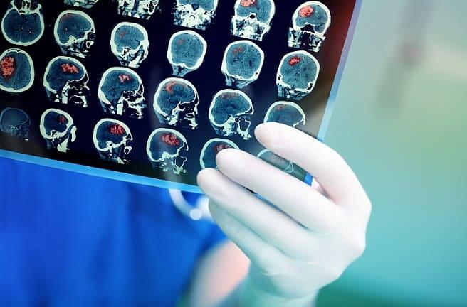 mão de médico segurando tomografia de crânio, avaliando coronavírus e neurologia