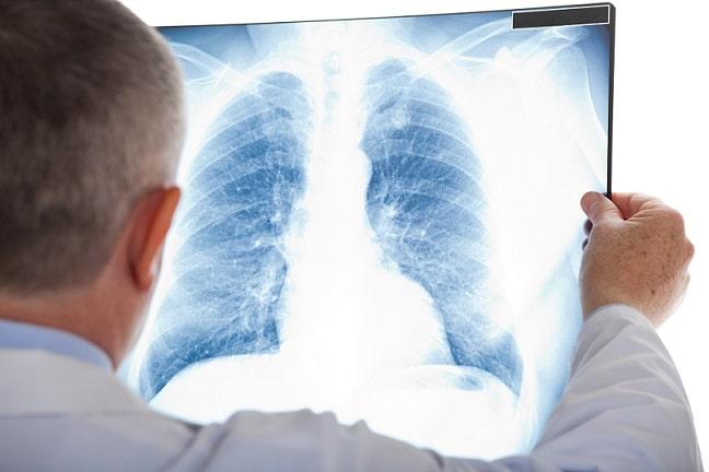 Médico analisa raio-x de pulmão de paciente com suspeita de tuberculose. Doença que o Brasil reduziu em 8% o número de óbitos na última década.