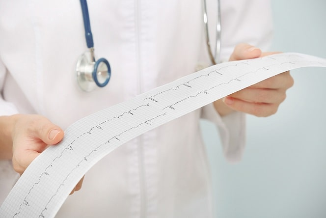 médico avaliando eletrocardiograma de paciente para receitar aspirina