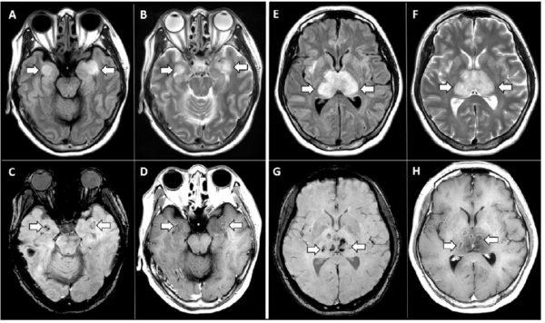 Ressonância magnética de paciente diagnosticado com Covid-19