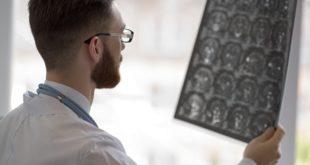 médico avaliando tomografia de paciente com encefalite por coronavírus